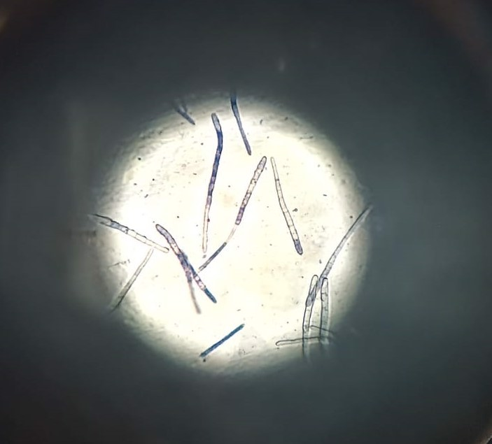 Cercospora-Pilzsporen unter dem Mikroskop